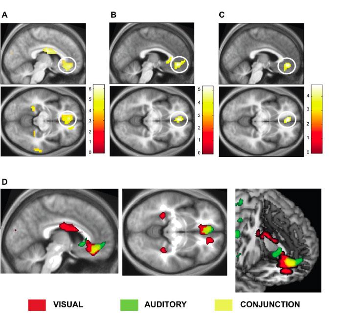 Attività corteccia cerebrale